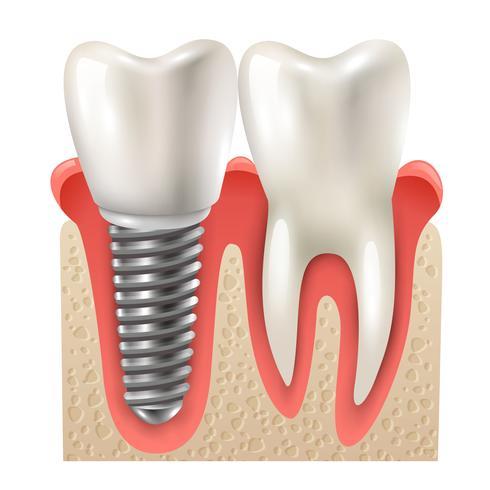 La raíz del diente perdido puede ser sustituida por una raíz artificial, generalmente de titanio, llamada implante.  El implante una vez colocado debajo de la encia y en contacto con el hueso de los maxilares se oseointegra, uniéndose fuertemente al tejido óseo para posteriormente poder colocar sobre este la prótesis dental. De este modo se consigue recuperar toda la estructura ofreciendo además toda la funcionalidad y apariencia de los dientes naturales.  Mediante implantes podemos realizar la sustitución de una o varias piezas, o incluso de toda la dentadura. Gracias a este tratamiento es posible hacer una vida totalmente normal, por lo que masticar cualquier tipo de alimento y sonreir ya no supondrá ningún problema.  Luego de un estudio minucioso del caso, que puede incluir radiografias, tomografías, fotografías clínicas, modelos de yeso y maquetas diagnósticas se expone ante el paciente las posibilidades terapéuticas, estas incluyen básicamente dos protocolos: Instalación convencional. Instalación con carga inmediata.