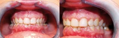 Enfermedad periodontal y embarazo - Gaceta Dental