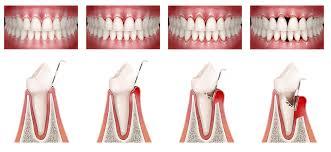 Tratamientos Periodontales - Estética Dental - Instituto Maxilofacial
