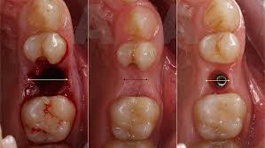 Opciones terapéuticas tras la extracción dentaria. Revisión ...